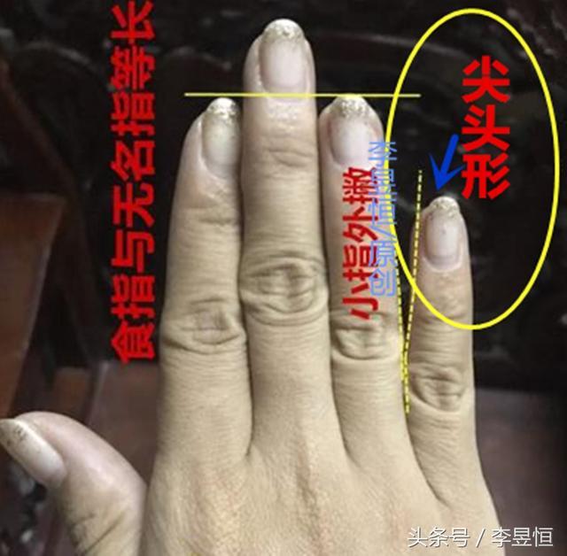 小指尖端的形态代表的性格倾向及运势能力!
